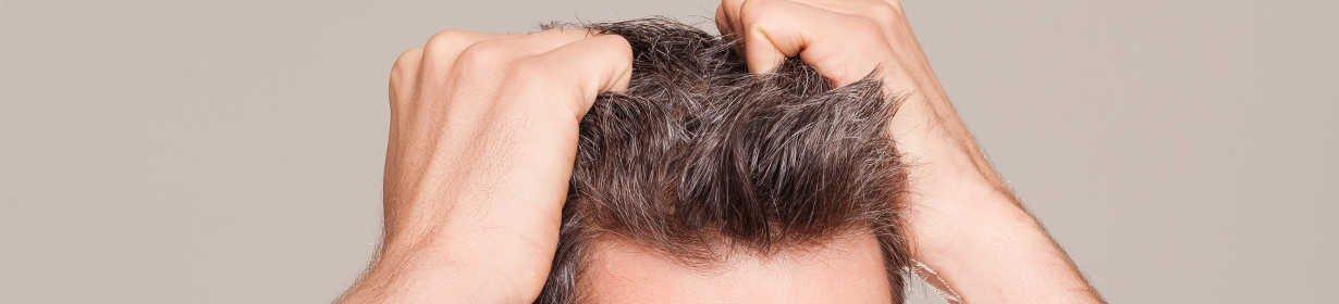 FUE Haartransplanation