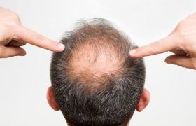 Haarausfall Hinterkopf