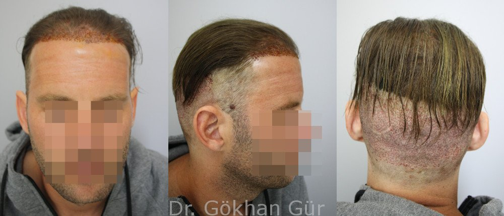 Haartransplantation mit Teilrasur