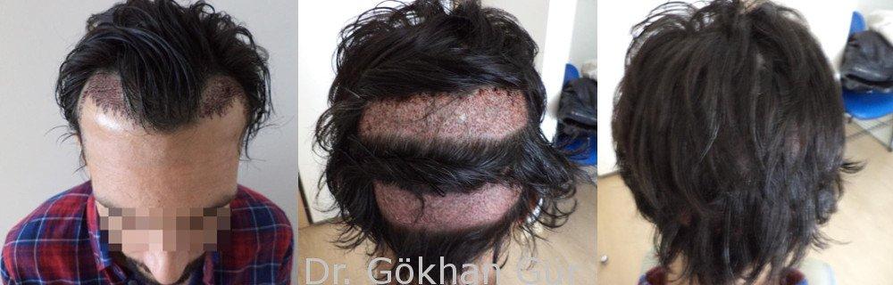 Haartransplantation ohne Komplettrasur