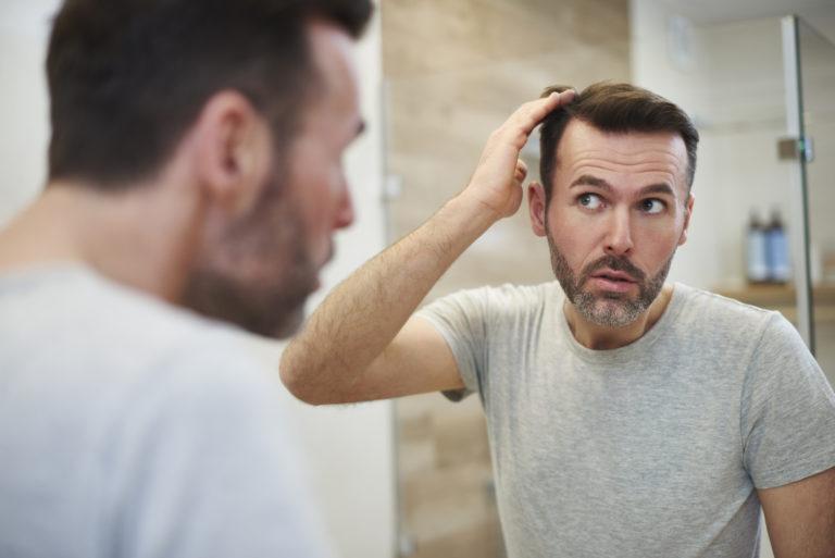 androgenetischer Haarausfall