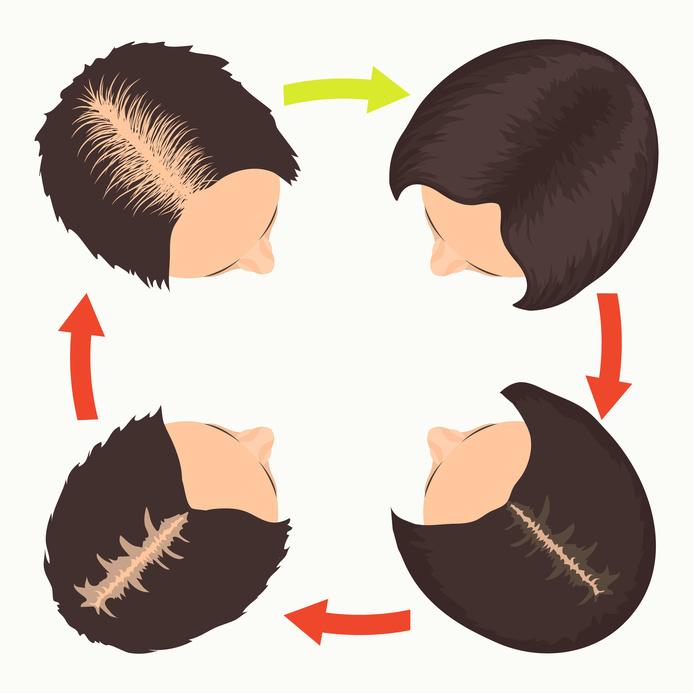 Androgenetische Alopezie bei Frauen