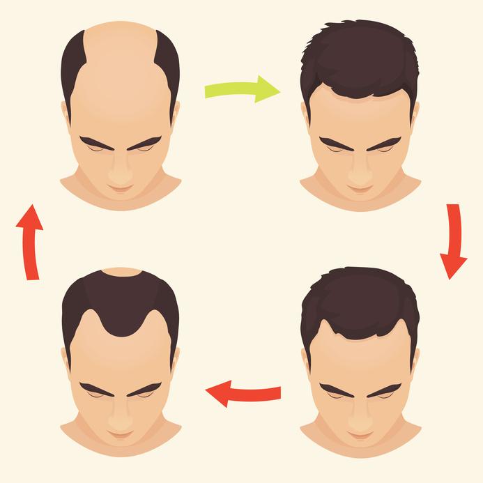 Verlauf bei erblich bedingten Haarausfall