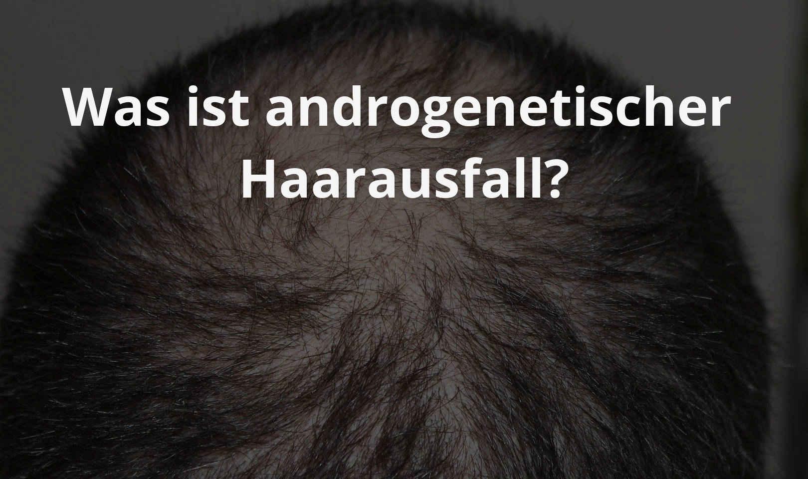 Was ist androgenetischer Haarausfall?