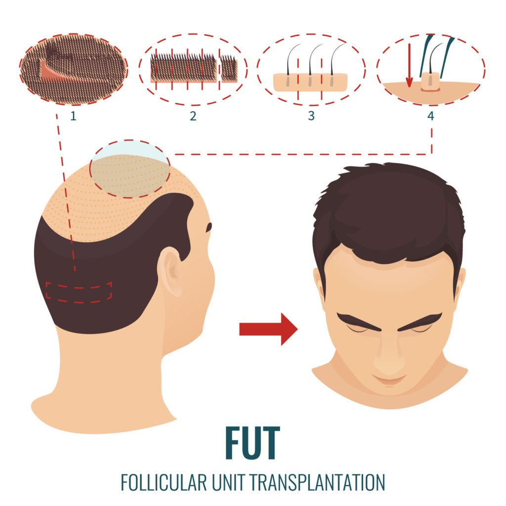 FUT Haartransplantation