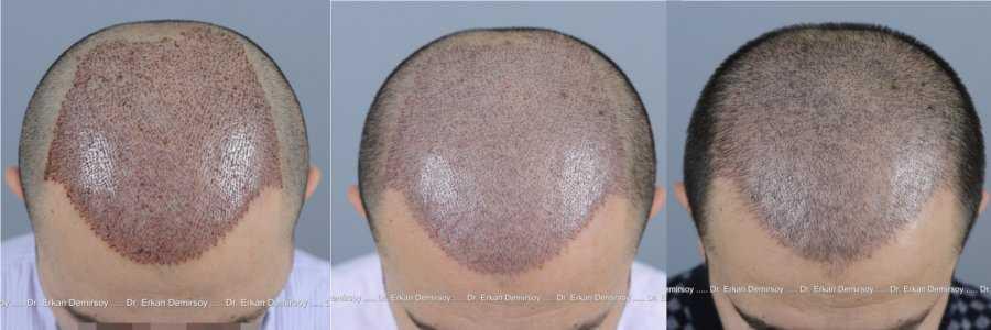 Haartransplantation für Männer: Vorher-Nachher
