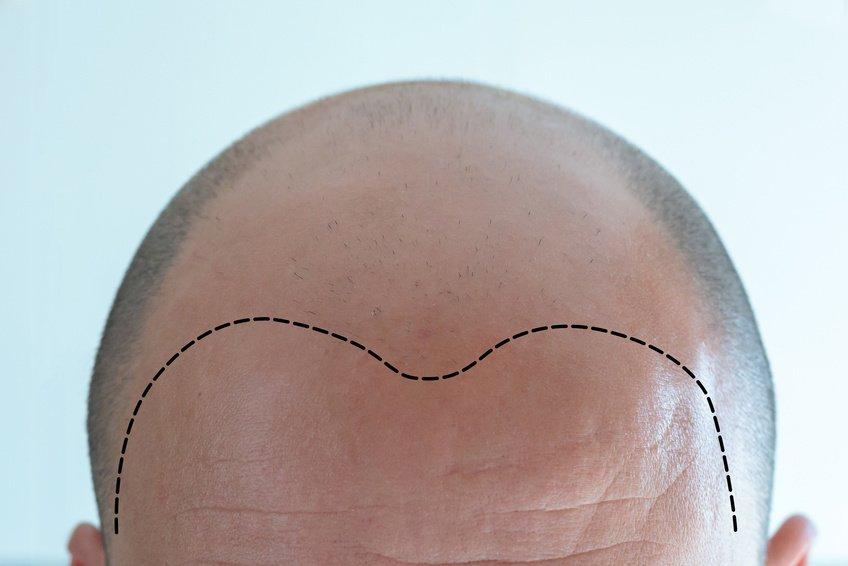 Vorher-Nachher bei einer Haartransplantation
