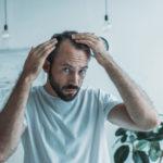 Haarausfall: Arten, Ursachen & was man dagegen unternehmen kann