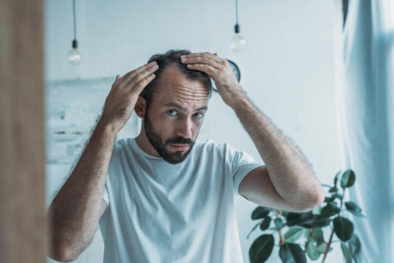 Arten von Haarausfall: Ursachen & was man dagegen unternehmen kann