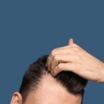 Haarausfall bei Männern: Arten und Behandlungen