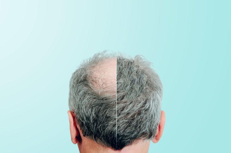 Methoden der Haartransplantation: Vor- & Nachteile, Kosten etc.