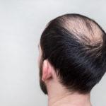 Kreisrunder Haarausfall: Symptome, mögliche Ursachen & Therapien