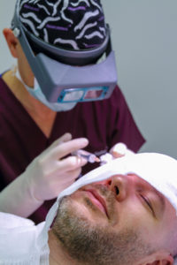 Haarausfall nach einer Haartransplantation ist ganz normal