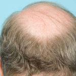 Mittel gegen Haarausfall: Was hilft wirklich?