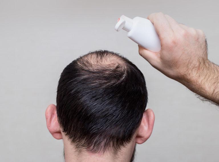 Haarwachstum beschleuningen