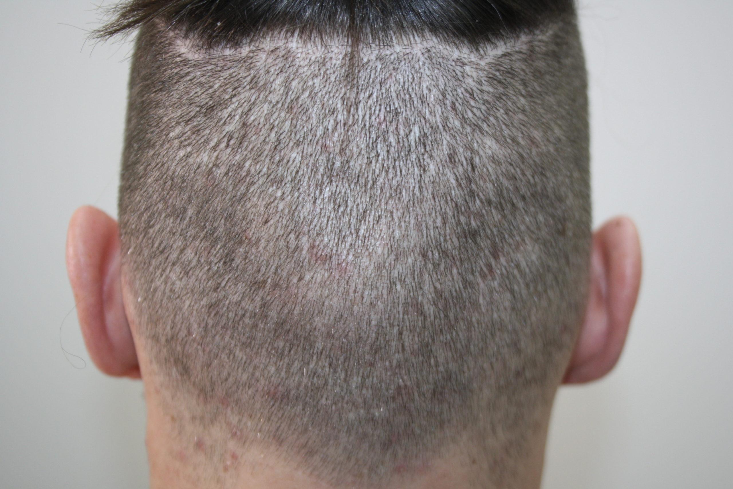 Kurzhaarfrisur nach FUE Haartransplantation