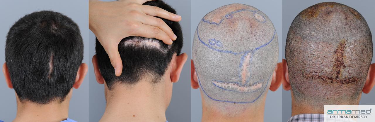 Haartransplantation auf Narben / Narben entfernen