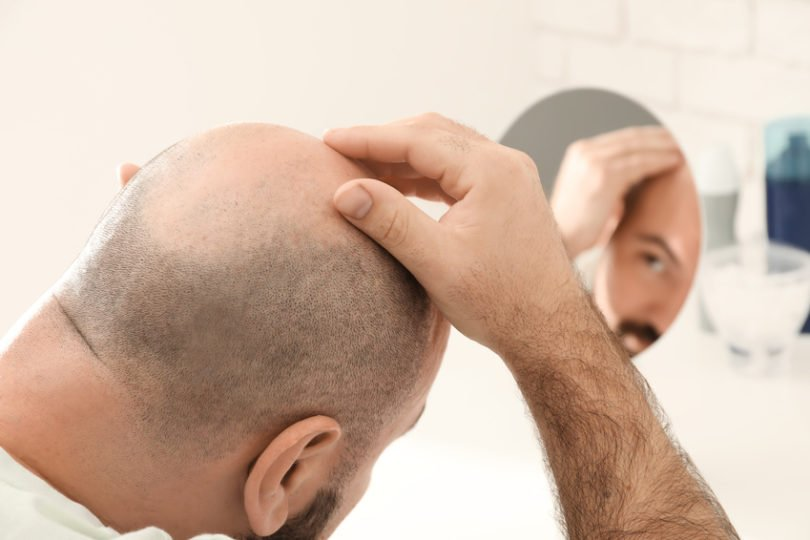 Haarausfall ist erblich bedingt