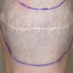Narben nach Haartransplantation