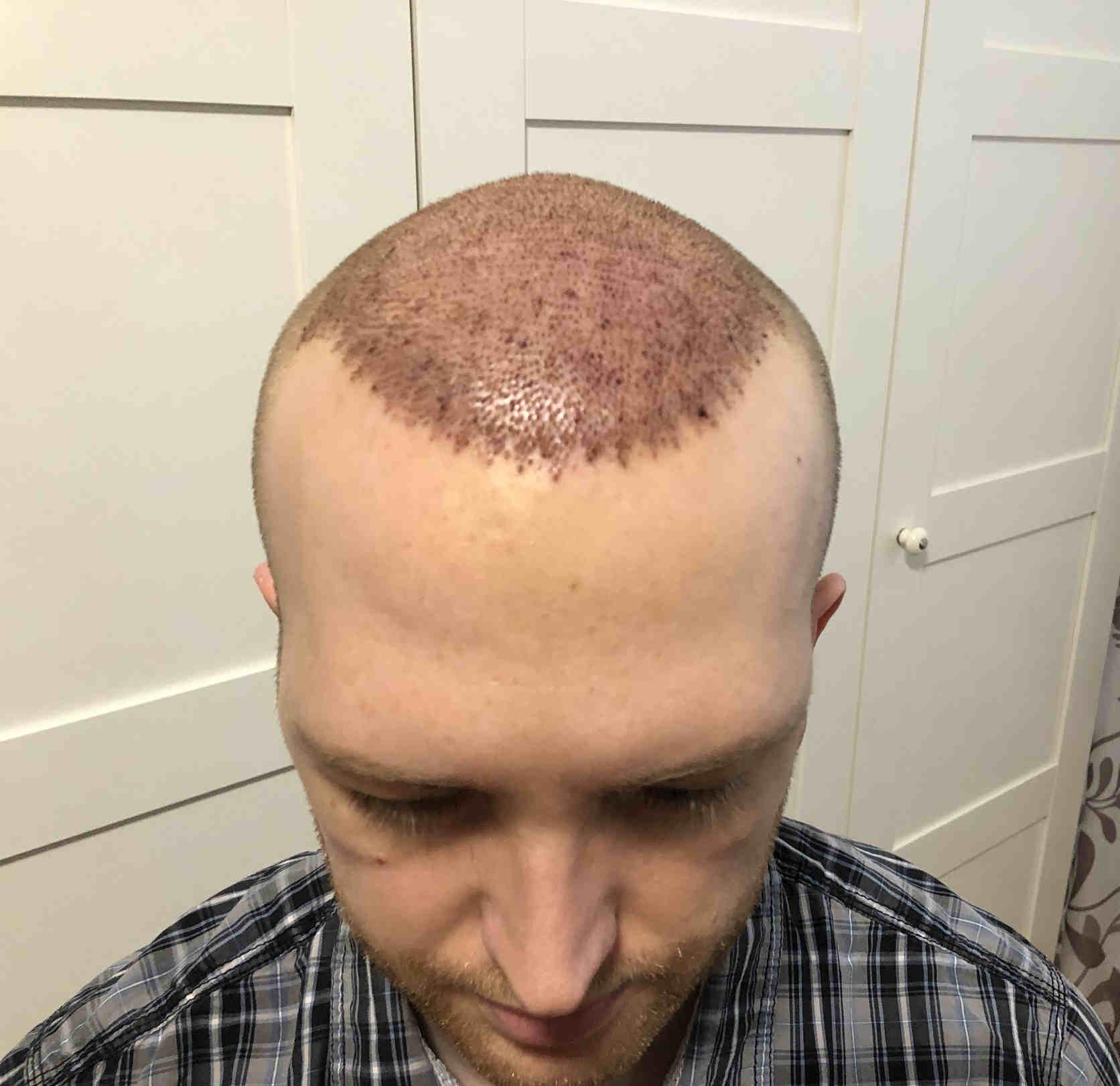 1. Tag nach Haartransplantation