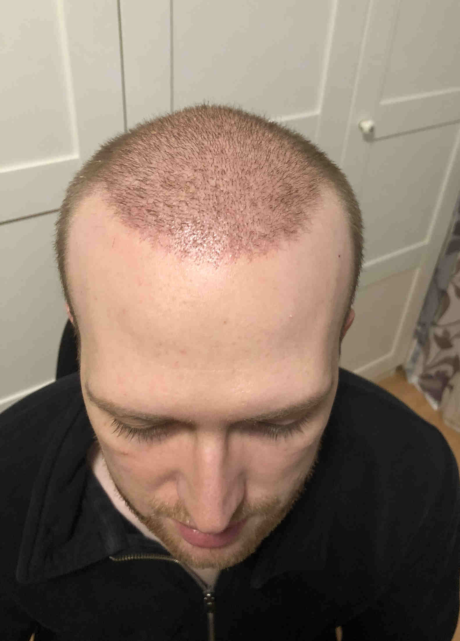 2 Wochen nach Haartransplantation