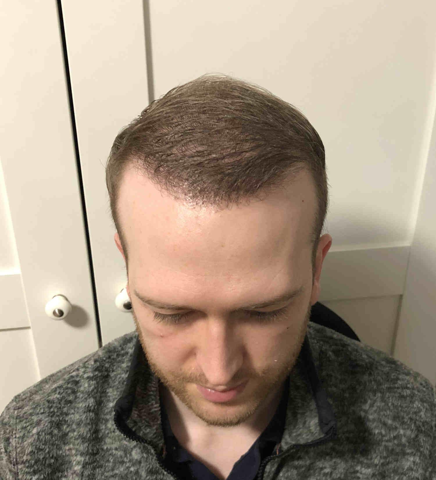 6 Monate nach Haartransplantation