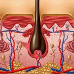 Was ist ein Graft oder Transplantat?