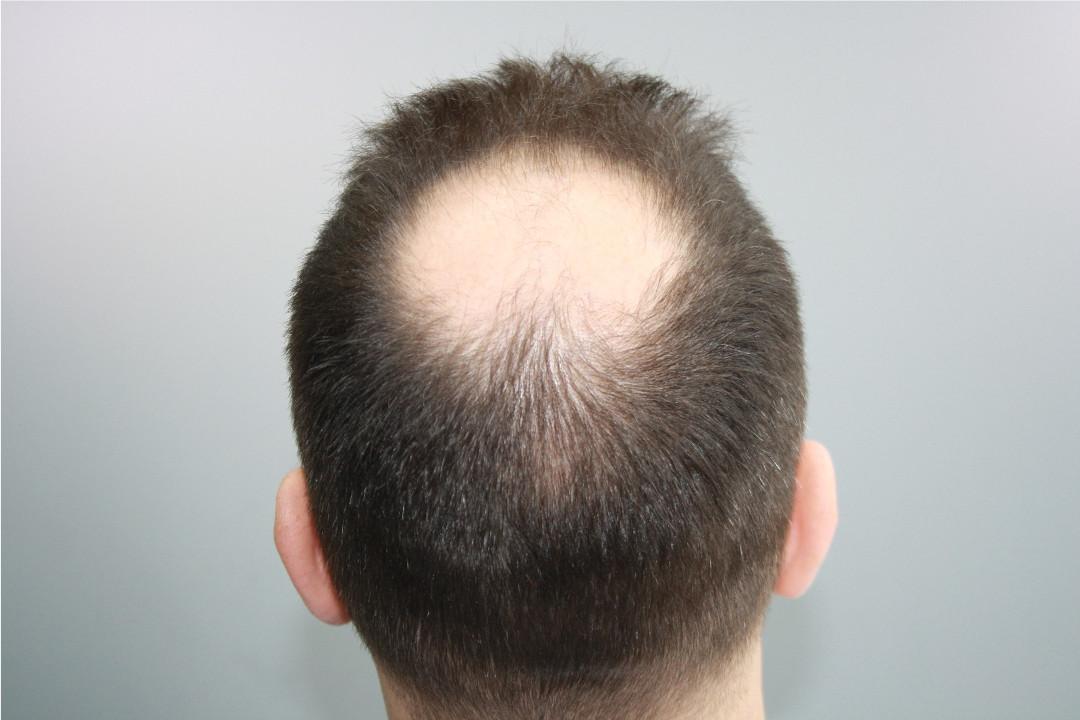 Der Haarkranz als Spenderbereich