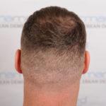 Haartransplantation: Der Spenderbereich am Hinterkopf