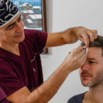 Haartransplantation: natürliche versus künstliche Haarlinie