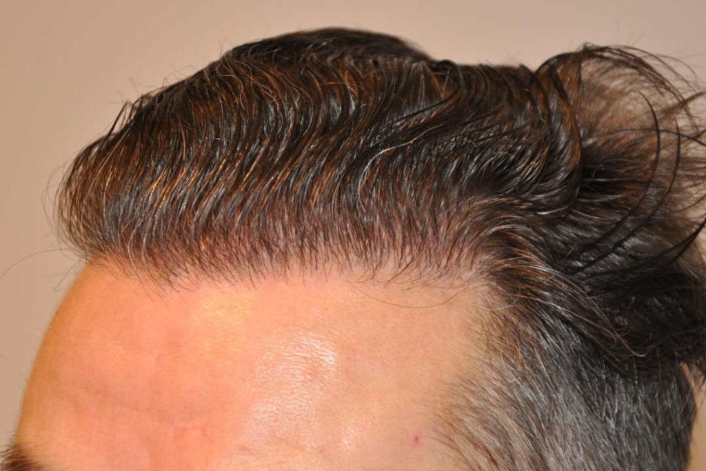 Natürliche Haarlinie