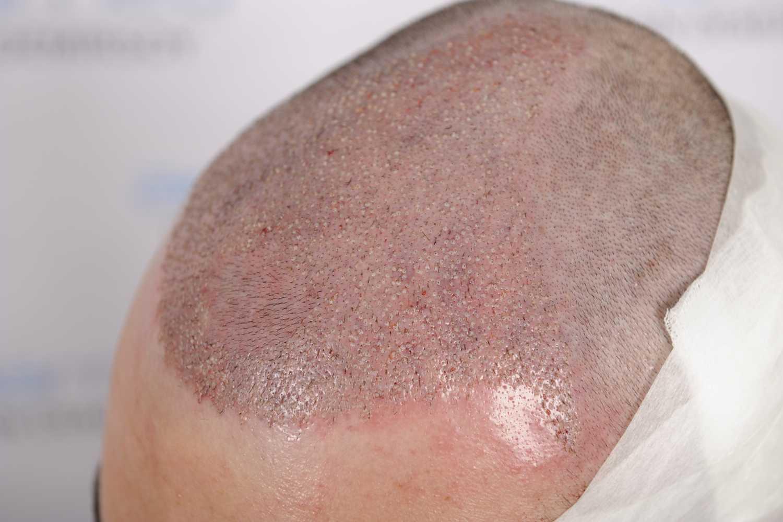 Krusten nach Haartransplantation
