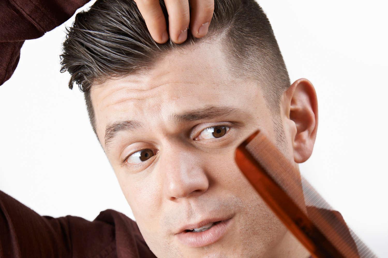 Genetisch bedinger Haarausfall Symptome