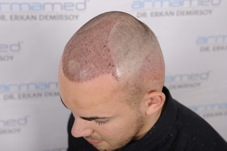 Schwellung nach Haartransplantation