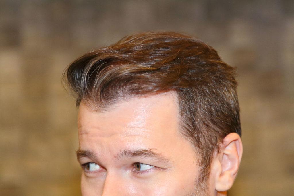 Wann kann man von Erfolg bei einer Haartransplantation sprechen?