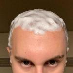 Haarwäsche nach Haartransplantationen: Dies ist zu beachten