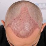 Wie lange dauert die Heilung nach Haartransplantation?