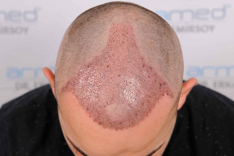 Heilung nach Haartransplantation