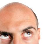 Lohnt sich eine Haartransplantation?
