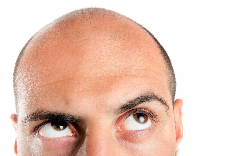 Lohnt sich eine Haartransplantation
