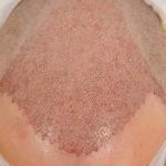 Haartransplantation: Wann sind die Grafts fest?