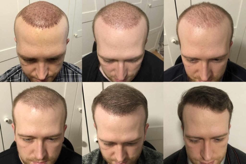 Haartransplantation Verlauf in Bildern - Zeitraffer